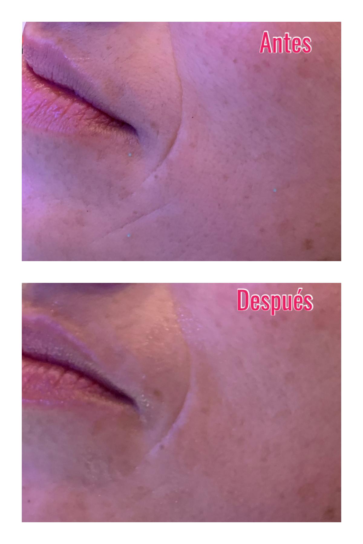 Whynot-shopper-centre-kybalion-tratamiento-estetico-oxigenesis-activador-celular-natural-capilar-facial-corporal-beauty-skin-care